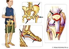 Some of the joints affected by JA.